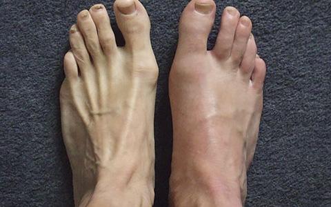 Подагрический артрит: симптомы, лечение подагрического артрита в ...