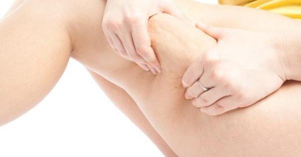 7 шагов в борьбе с целлюлитом
