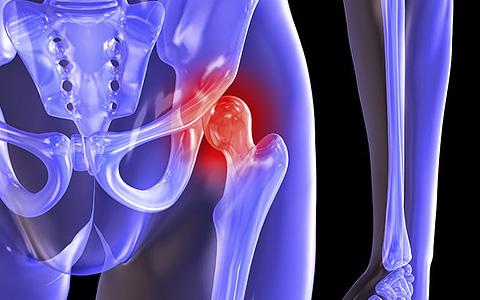 Коксартроз тазобедренного сустава: симптомы, причины, лечение