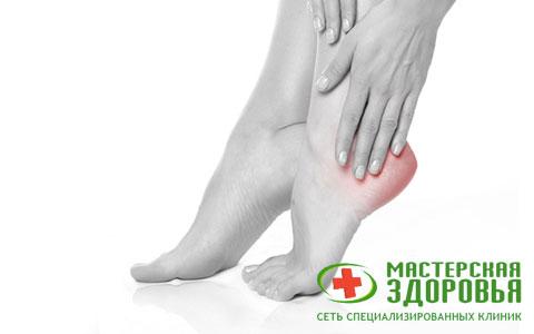 Парез стопы: причины, симптомы, лечение «конской стопы»