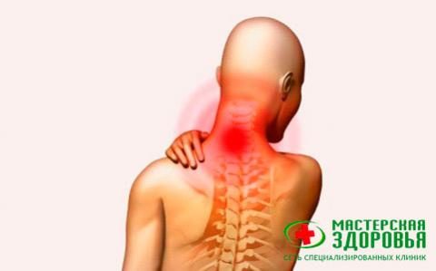 Синдром позвоночной артерии: симптомы, лечение и профилактика
