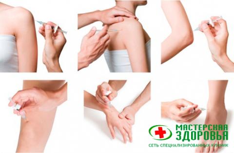 Блокады суставов — эффективное лечение воспалений и снятие боли
