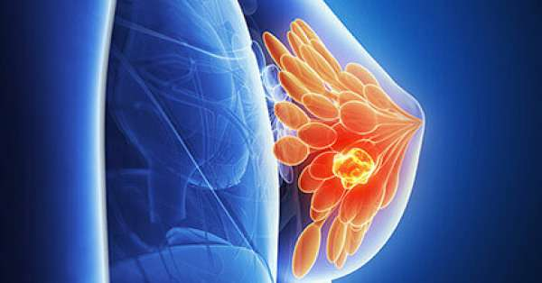 Ультразвуковая диагностика молочных желез - процедура позволяющая определить болезнь на ранней стадии