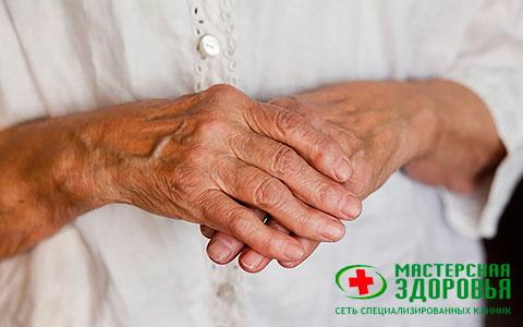 Ревматоидный артрит: симптомы, диагностика илечение в Санкт-Петербурге