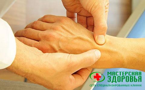 Артрит: симптомы, лечение артрита (воспаления суставов) в Санкт ...