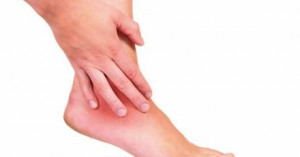 У кого возникает бурсит суставов и чем он опасен?
