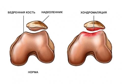 Хондромаляция: симптомы, диагностика, лечение суставов колена