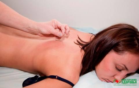 Иглоукалывание — лечение позвоночника, суставов и нервной системы иглами