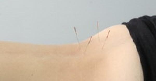 О методе рефлексотерапии
