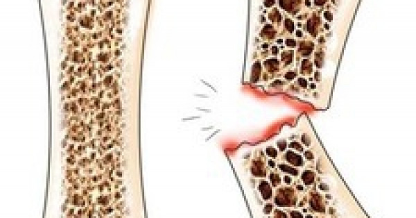 Остеопороз: безмолвная эпидемия