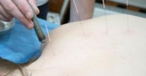 Иголки против боли (рефлексотерапия)
