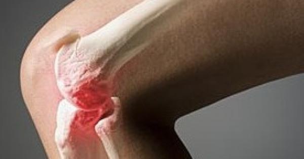 Безоперационное лечение артроза суставов
