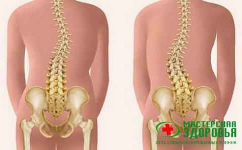 Кифосколиоз: симптомы, лечение кифосколиоза позвоночника