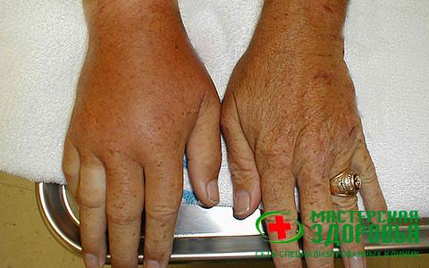 Подагра: признаки, симптомы и лечение заболевания