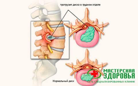 Протрузия грудного отдела: причины, симптомы и лечение без операции