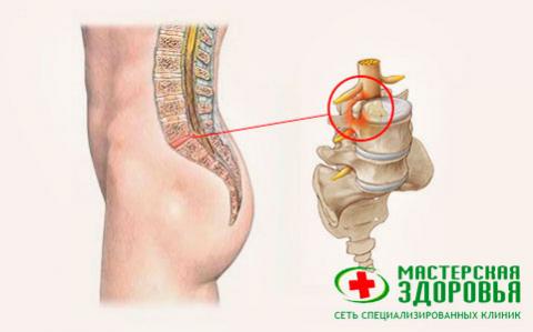 Протрузия поясничного отдела позвоночника: симптомы, лечение в ...