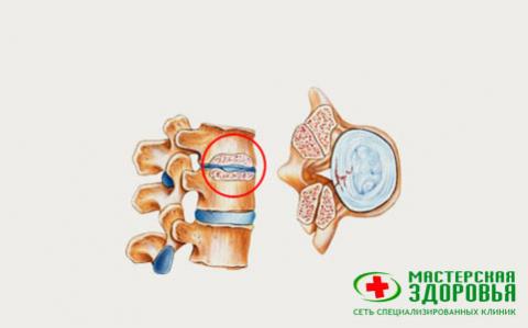 Протрузия межпозвонковых дисков: лечение и диагностика, симптомы