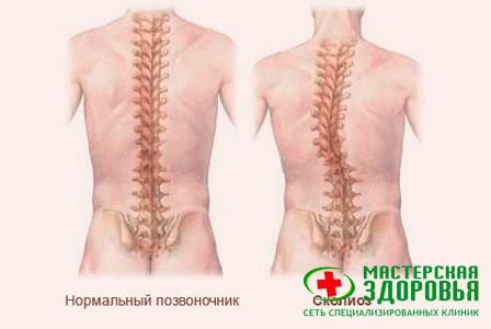Сколиоз (искривление позвоночника): симптомы, лечение сколиоза у ...